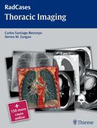 Thoracic Imaging 1st edition 9781604061871 1604061871