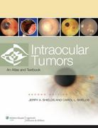 Intraocular Tumors 2nd Edition 9780781775809 0781775809