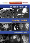 Fundamentals of Body MRI 2nd Edition 9780323448987 0323448984