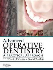 Advanced Operative Dentistry 0 9780702046971 0702046973
