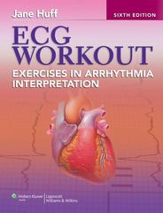 ECG Workout 6th Edition 9781451149067 1451149069