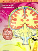Neurology 2nd edition 9780443100710 0443100713