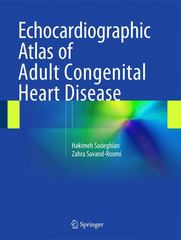 Echocardiographic Atlas of Adult Congenital Heart Disease 1st Edition 9783319129334 3319129333
