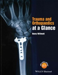 Trauma and Orthopaedics at a Glance 1st Edition 9781118802533 1118802535