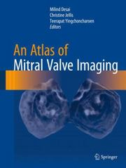 An Atlas of Mitral Valve Imaging 1st Edition 9781447166726 1447166728