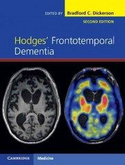 Hodges' Frontotemporal Dementia 2nd Edition 9781107086630 1107086639