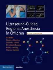 Ultrasound-Guided Regional Anesthesia in Children 1st Edition 9781107098770 1107098777