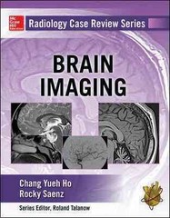 Radiology Case Review Series: Brain Imaging 1st Edition 9780071826921 0071826920