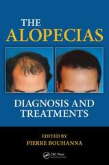 The Alopecias 1st Edition 9781482212754 1482212757