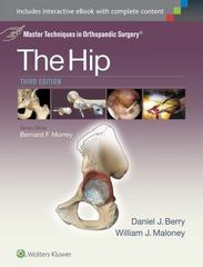 Master Techniques in Orthopaedic Surgery: The Hip 3rd Edition 9781451194029 1451194021