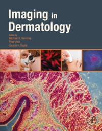 Imaging in Dermatology 1st Edition 9780128028599 0128028599
