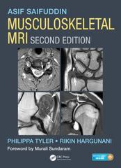 Musculoskeletal MRI, Second Edition 2nd Edition 9781482247800 1482247801