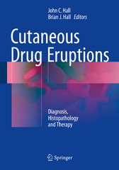 Cutaneous Drug Eruptions 1st Edition 9781447167297 1447167295