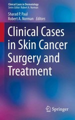Clinical Cases in Skin Cancer Surgery and Treatment 1st Edition 9783319209371 331920937X