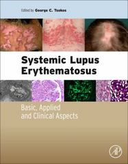 Systemic Lupus Erythematosus 1st Edition 9780128019177 0128019174
