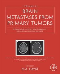 Brain Metastases from Primary Tumors, Volume 3 1st Edition 9780128035597 0128035595