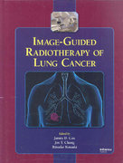 Image-Guided Radiotherapy of Lung Cancer 1st edition 9780849387838 0849387833