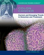 Colon Cancer 0 9781404203877 1404203877